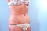 Liposuction after 3446268