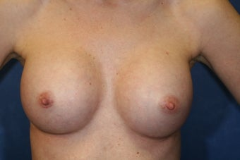 30 Year Old Female Breast Augmentation  after 1085009