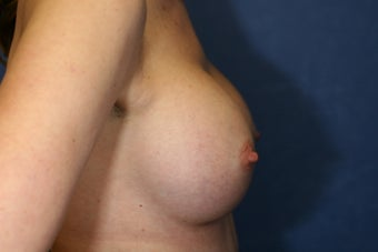 30 Year Old Female Breast Augmentation  1085009