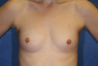 30 Year Old Female Breast Augmentation  before 1085009