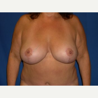 45-54 year old woman treated with Breast Lift after 3009141