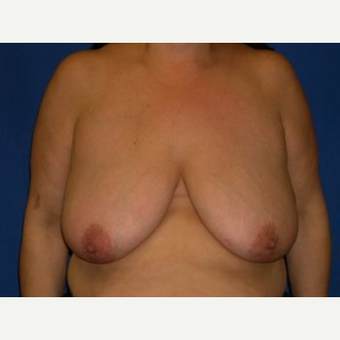45-54 year old woman treated with Breast Lift before 3009141