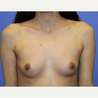 25-34 year old woman treated with Breast Augmentation before 3508104