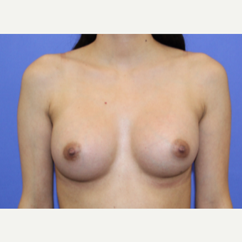 25-34 year old woman treated with Breast Augmentation after 3508104