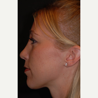 26 year old woman treated with rhinoplasty after 3839730