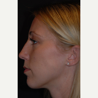 26 year old woman treated with rhinoplasty before 3839730
