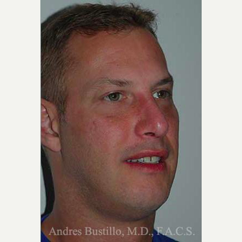 38 year old man treated with Revision Rhinoplasty after 3460800