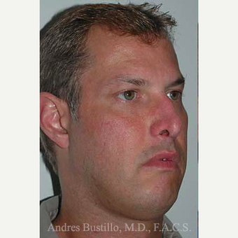 38 year old man treated with Revision Rhinoplasty before 3460800