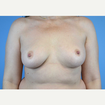 45-54 year old woman treated with Breast Implants before 3440082