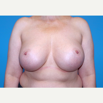45-54 year old woman treated with Breast Implants after 3440082