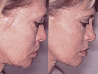59 Year Old Female Before and 1 Month After Ultherapy of Face, Neck, & Brow before 1492889