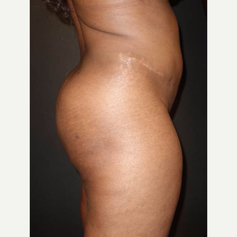 25-34 year old woman treated with Brazilian Butt Lift after 3372834