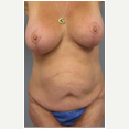 47 year old woman treated with Mommy Makeover after 3680029