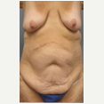 47 year old woman treated with Mommy Makeover before 3680029
