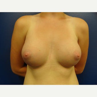 18-24 year old woman treated with Breast Implants after 3205573