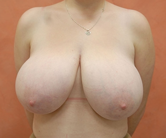 Breast Reduction before 1450832