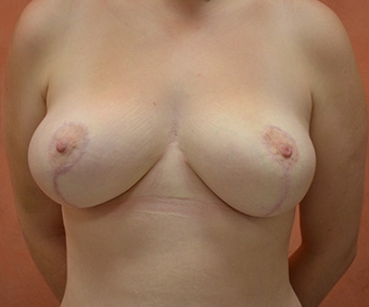 Breast Reduction after 1450832