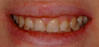 Laser Gum Reshaping, Gingivoplasty, Gingivectomy and Veneers before 1271712