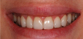 Laser Gum Reshaping, Gingivoplasty, Gingivectomy and Veneers after 1271712