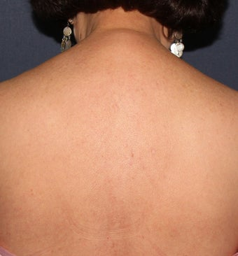 64 year old female with brown spots and red spots on her back. Treated with Vbeam and alex lasers after 1287722