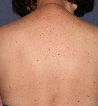 64 year old female with brown spots and red spots on her back. Treated with Vbeam and alex lasers before 1287722