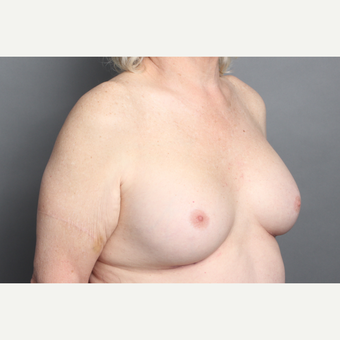 65-74 year old woman treated with Breast Implants with anatomically shaped gummy bear implants after 2984839