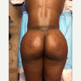 35-44 year old woman treated with Smart Lipo after 3286904