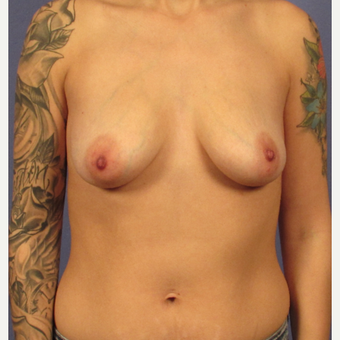 25-34 year old woman treated with Breast Implants before 3095754