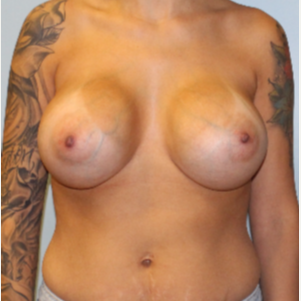 25-34 year old woman treated with Breast Implants after 3095754