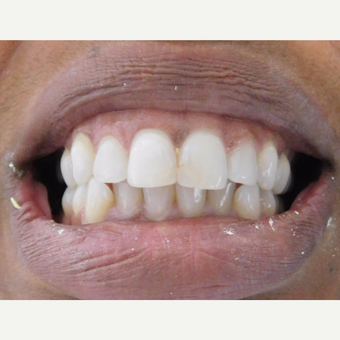 Porcelain Veneers and crowns Female Patient before 3838045