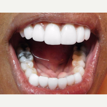 Porcelain Veneers and crowns Female Patient after 3838045