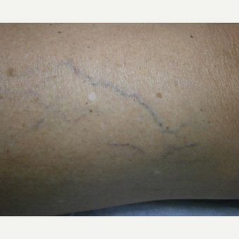 55-64 year old woman treated with Yag Laser before 3153526