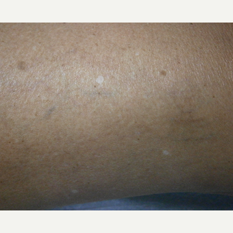 55-64 year old woman treated with Yag Laser after 3153526