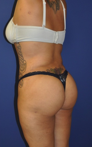 Brazilian Butt Lift and Tummy Tuck after 1235797