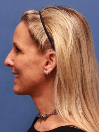 "Woman in her 40s requested neck ""tightening"". after 1271213"