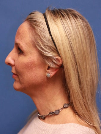 "Woman in her 40s requested neck ""tightening"". before 1271213"