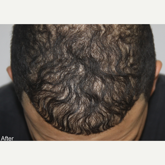 25-34 year old man treated with FUE Hair Transplant after 3616894