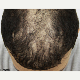 25-34 year old man treated with FUE Hair Transplant before 3616894