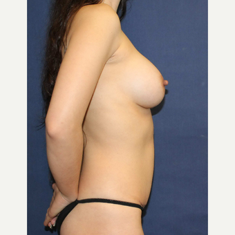 Mommy makeover with Mini Tummy Tuck and Sientra gummy bear breast implants after 3714725