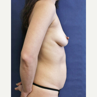 Mommy makeover with Mini Tummy Tuck and Sientra gummy bear breast implants before 3714725