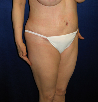 35-44 year old woman treated with Tummy Tuck after 3766086