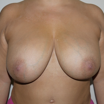 35-44 year old woman treated with Breast Implant Removal before 3420321