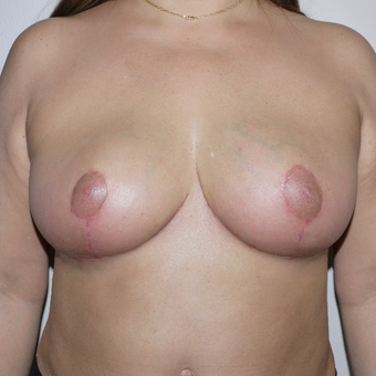 35-44 year old woman treated with Breast Implant Removal after 3420321