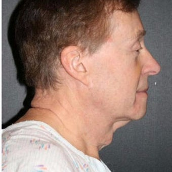 Man treated with Chin Liposuction before 2661129