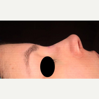 25-34 year old woman treated with Rhinoplasty after 3211281