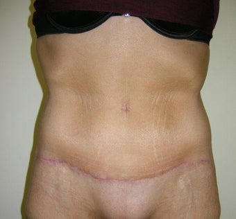35-44 year old woman treated with Tummy Tuck after 3411414