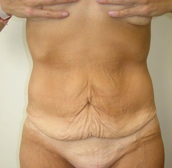 35-44 year old woman treated with Tummy Tuck before 3411414