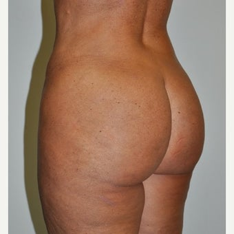 45-54 year old woman treated with Brazilian Butt Lift after 2677661