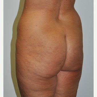 45-54 year old woman treated with Brazilian Butt Lift before 2677661