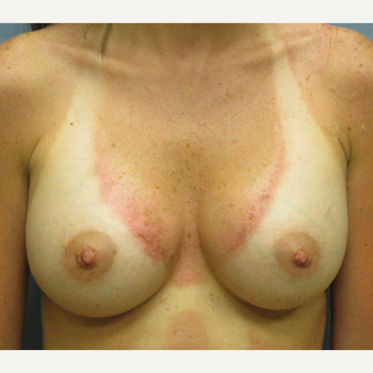 25-34 year old woman treated with Breast Augmentation after 3174636